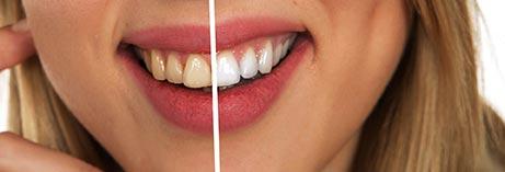Gula o Vita tänder Tandblekning